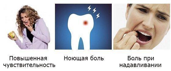 Как долго может болеть зуб под пломбой