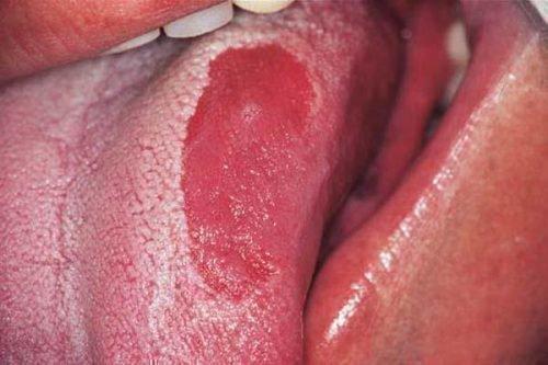 Глоссит части языка