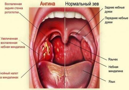 Ангина - причина боли