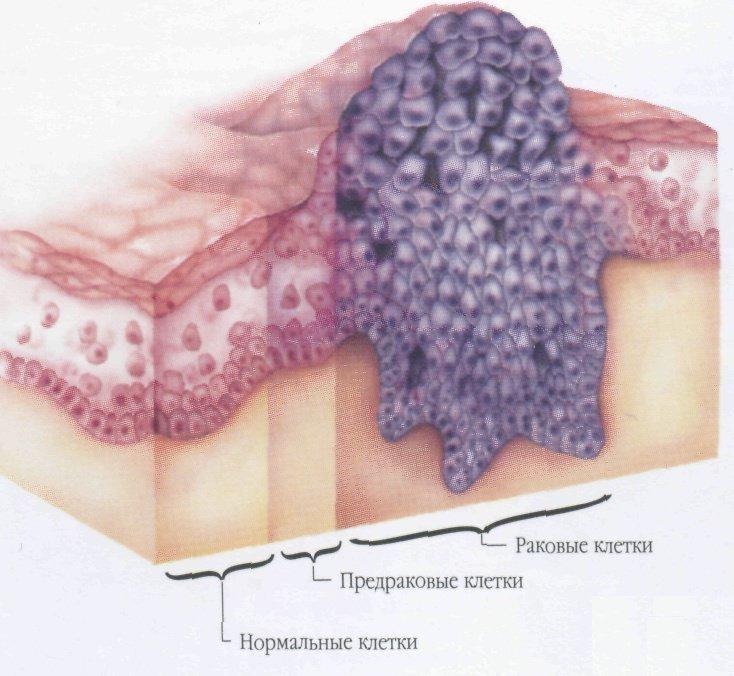 Предраковая природа лейкоплакии