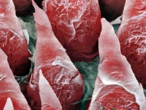 Сосочки под микроскопом