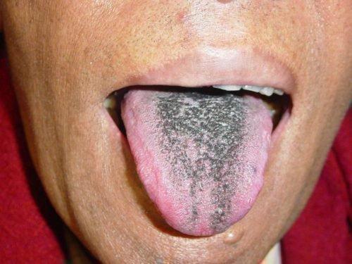Болезни языка фото
