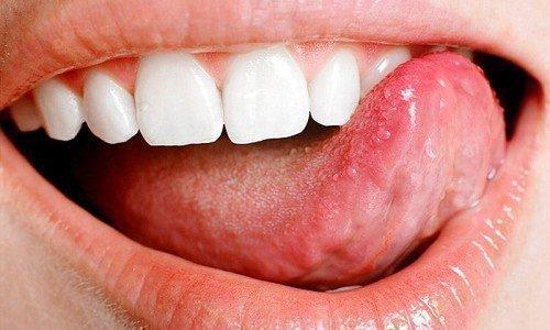 Аллергия на языке