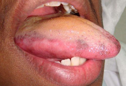 Болезни печени на языке