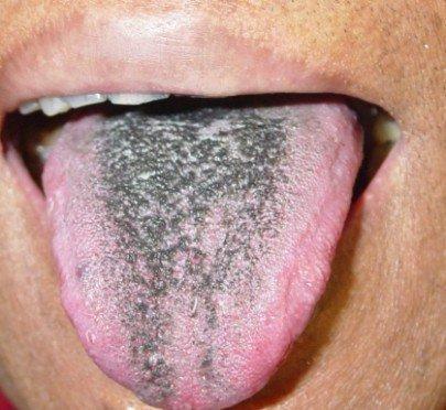 Черный язык при заболеваниях