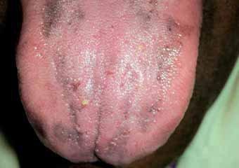 Черные пятна на языке у курильщика