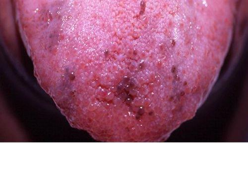 Фиолетовые пятна на языке при заболеваниях