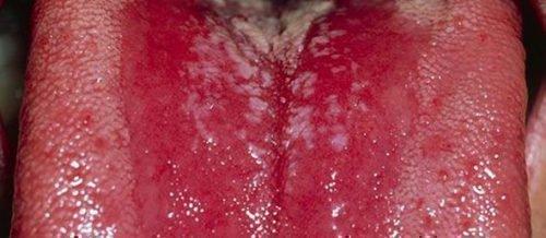 Глоссит языка - воспалительное заболевание