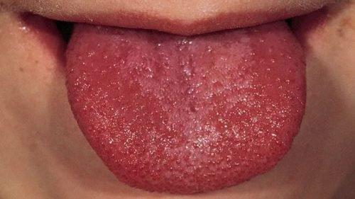 Химический ожог языка