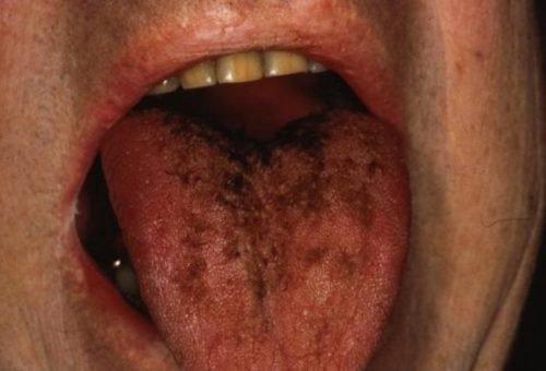 Хромогенный грибок на языке
