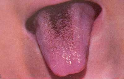 Коричневый налет на языке у подростков