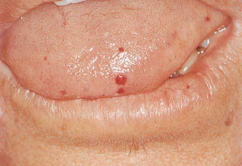 Красные пятна при онкологии