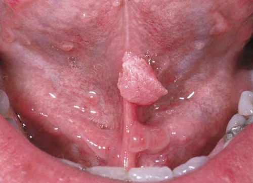 Крупная кондилома под языком