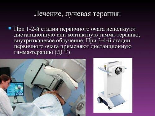 Лучевая терапия рака языка - аппарат
