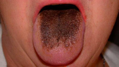 Налет на языке при ацидозе