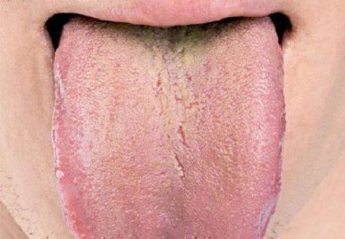 Налет на языке при нефрозе