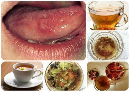 Отвары для полоскания рта