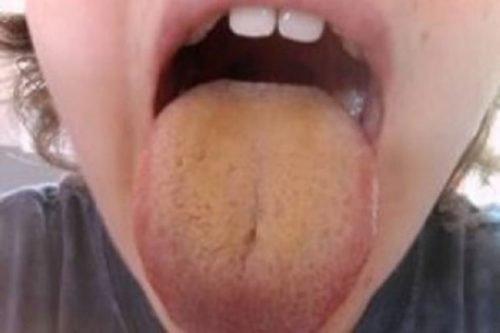 Желтый налет на языке у ребенка