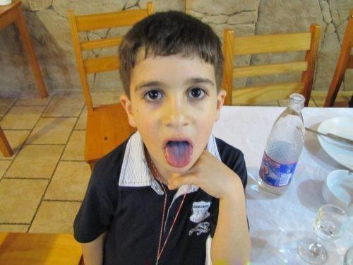Посинение языка у маленького мальчика