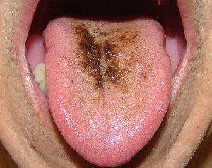 Налет на языке при болезни желудка