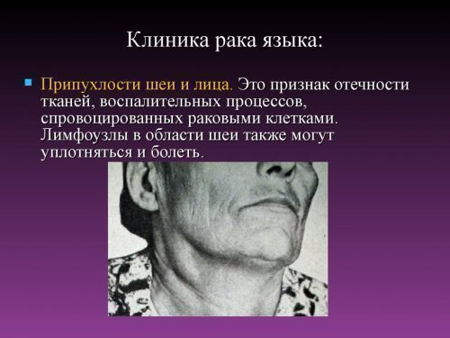 Проявления рака на шее и лице