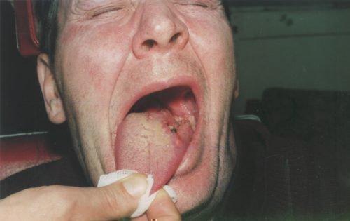 Рак корня языка у мужчины