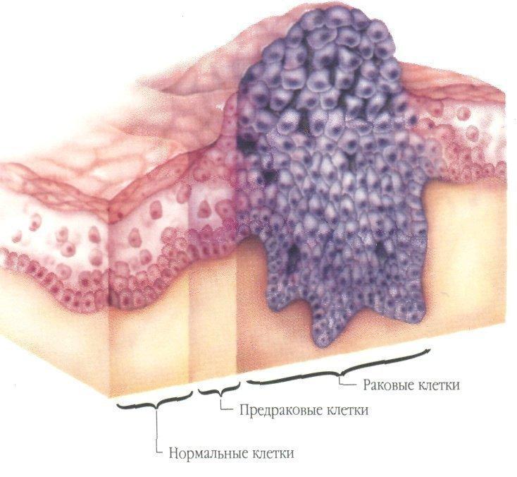 Образование раковых клеток
