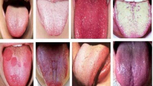 Разные виды налета на языке у взрослых