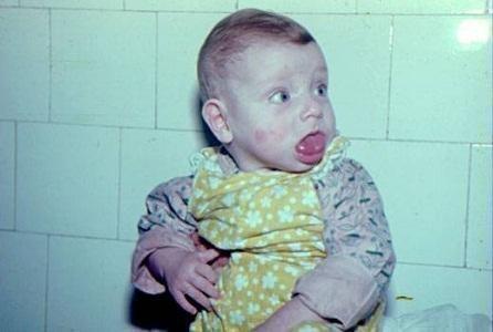 Ребенок 8 месяцев с макроглоссией