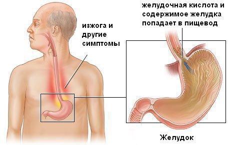 Рефлюкс эзофагит - причина