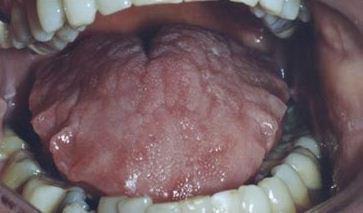 Следы зубов и трещины