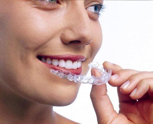 Выравнивание зубов каппами