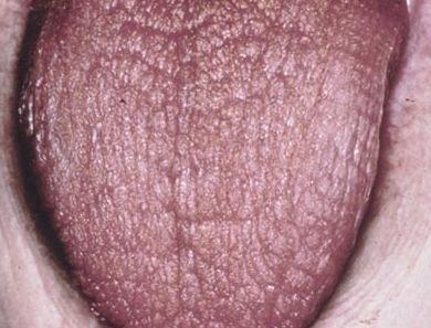 Атрофия языка - глоссит