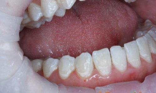 Белый налет на зубах легко счищается