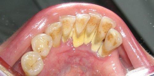 Наддесневой белый зубной камень