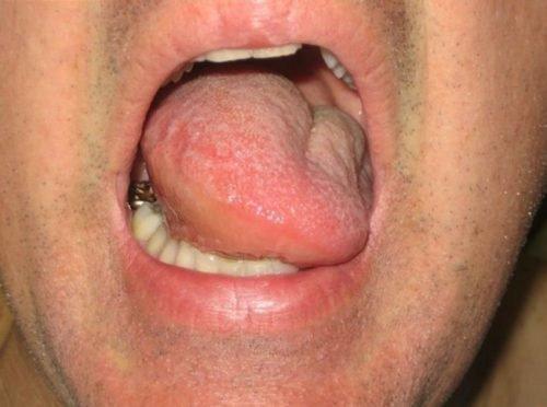 Частичная макроглоссия языка