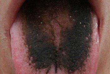 Черный налет на органе при ацидозе