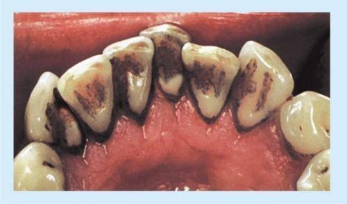 Черный зубной камень с внутренней стороны зубов