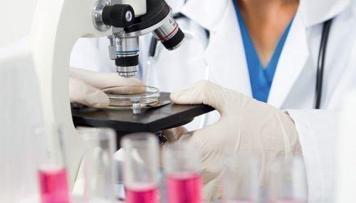 Диагностика молочницы под микроскопом