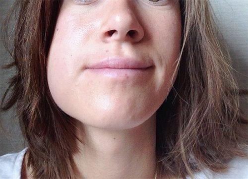 Флюс после лечения зуба