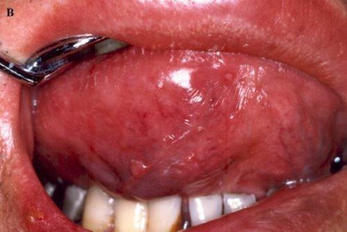 Герпесное и отечность воспаление языка