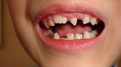 Шиловидный зуб у ребенка