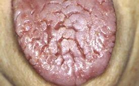 Cкладчатый (скротальный) глоссит языка: причины, симптомы и лечение