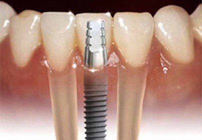 Имплантация зуба на штифт