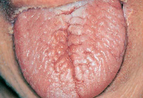 Кандидоз языка с трещинами