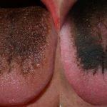 Причины появления коричневого налета на тканях языка