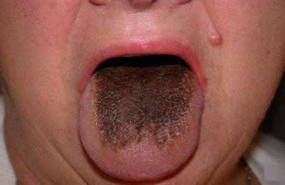 Коричневый язык при заболевании желудка