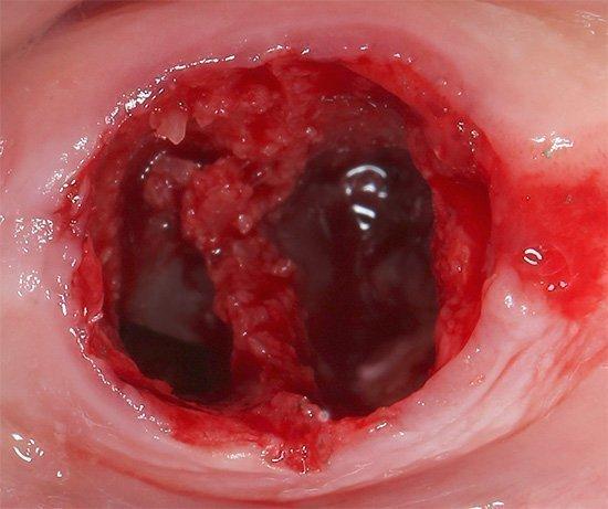 Кровяной сгусток в лунке после удаления