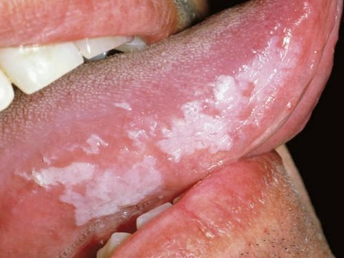 Лейкоплакия языка у курильщика