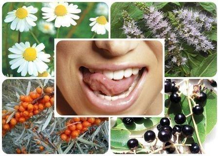 Лекарственные растения для полосканий